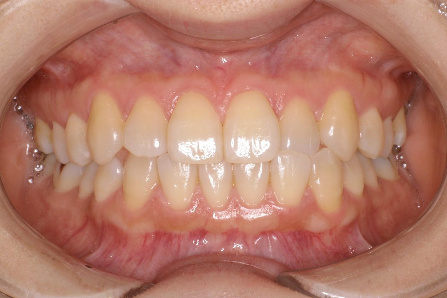 good gingiva 4