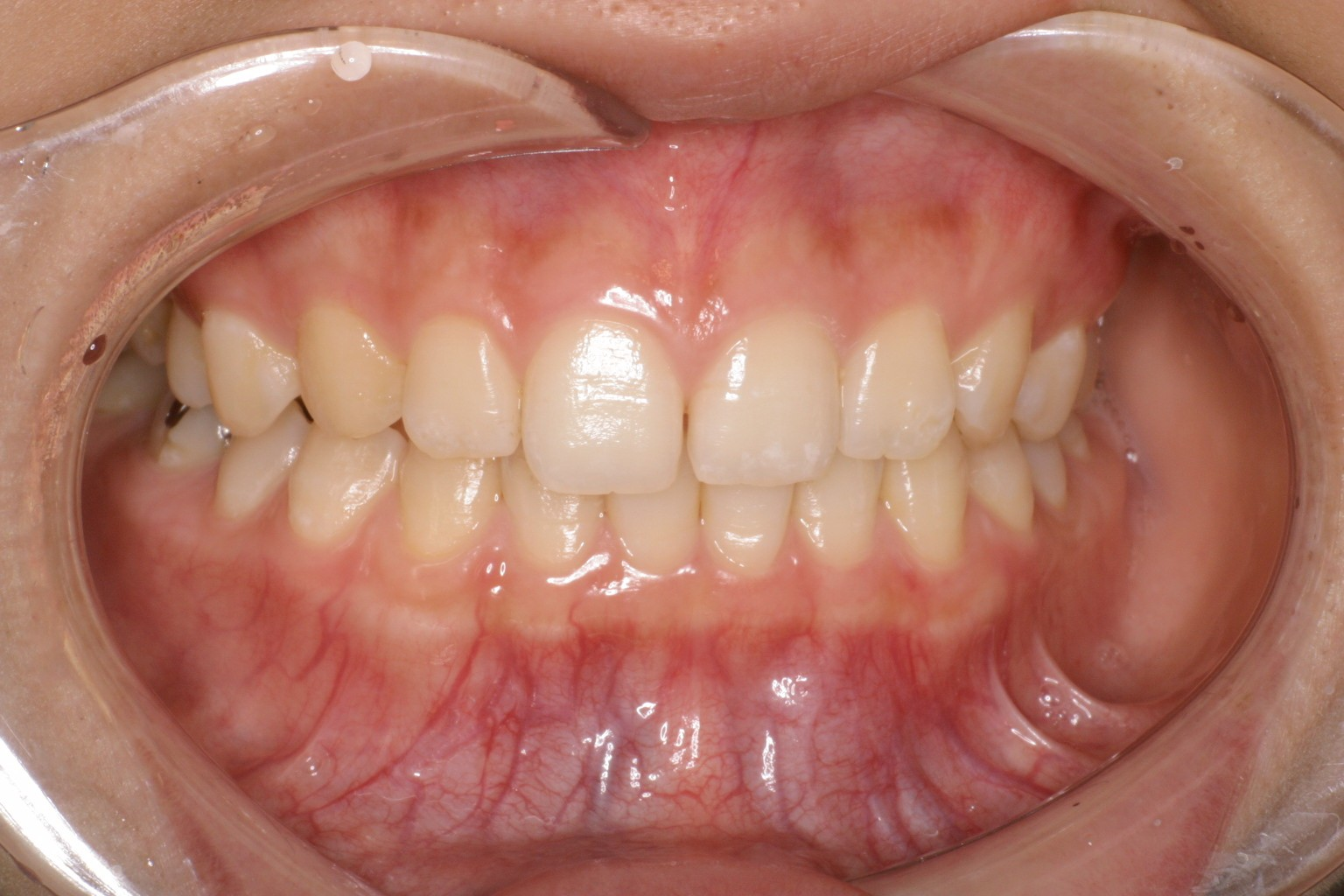 good gingiva 13