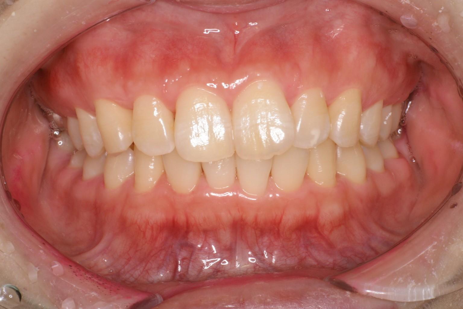 good gingiva 14