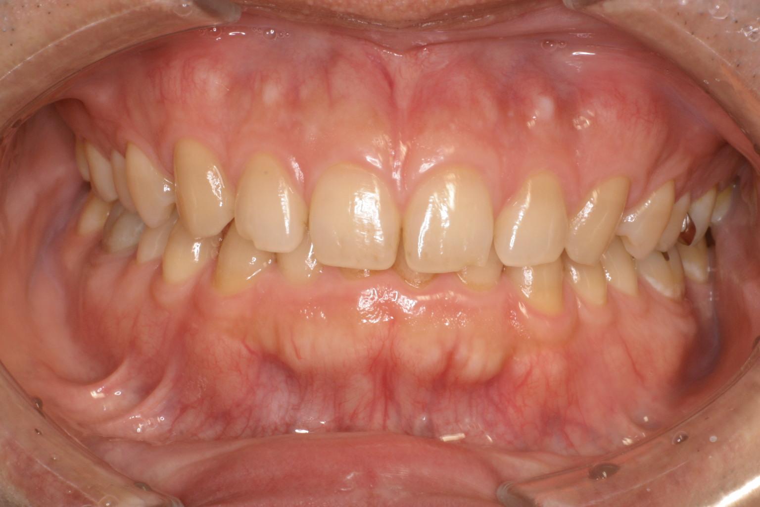 good gingiva 17