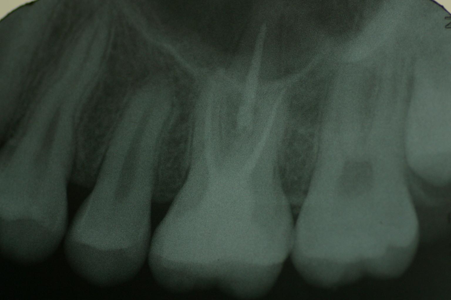 X ray 08 09 30