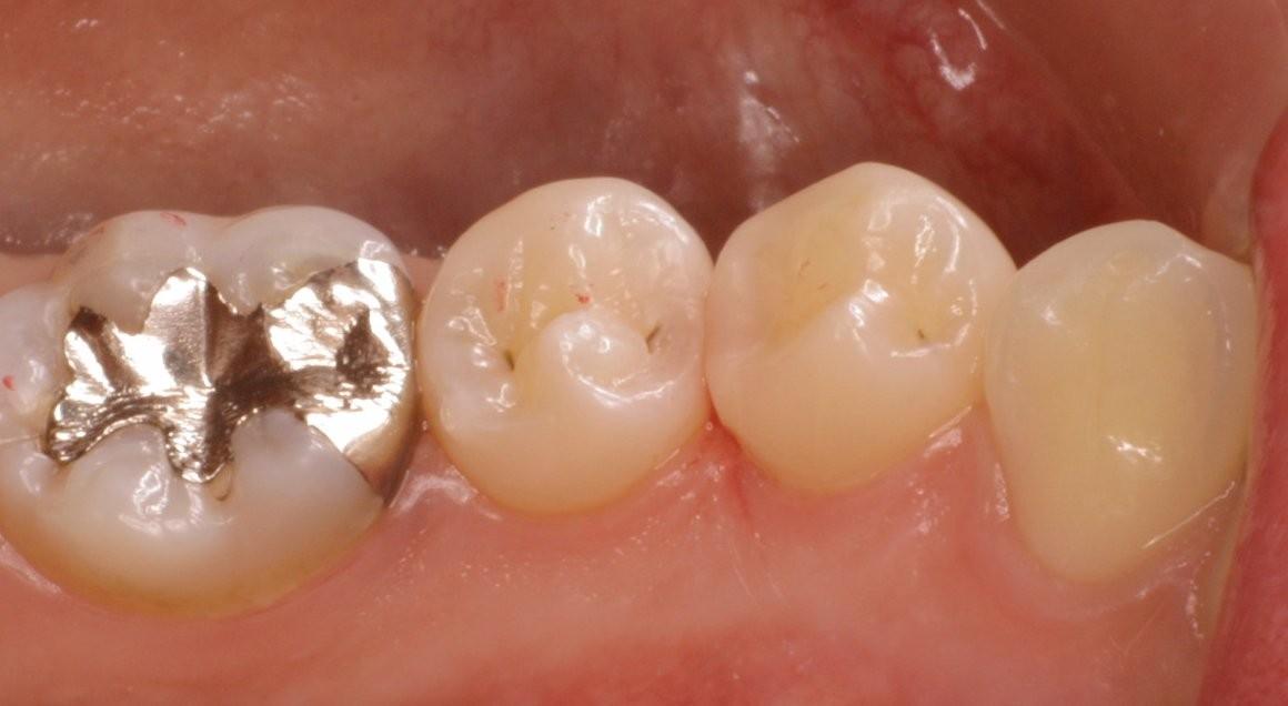 premolars after
