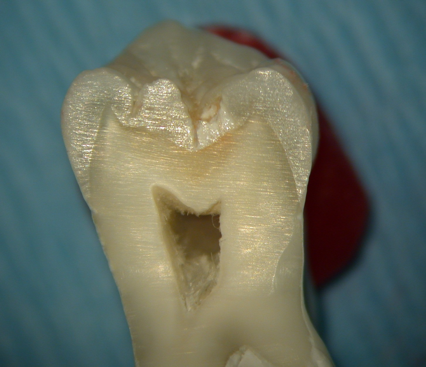 Extracted tooth (1)