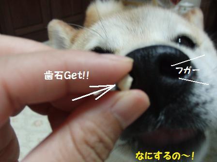歯石Get!