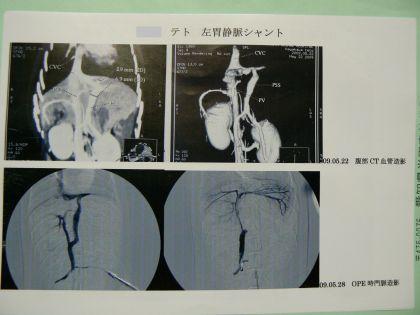 手術時の血管造影写真(2009.05.28)