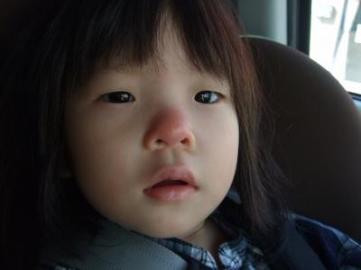 s-赤鼻のアン子