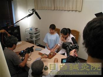 取材風景テレビ取材の様子2008年8月目白鍼灸院