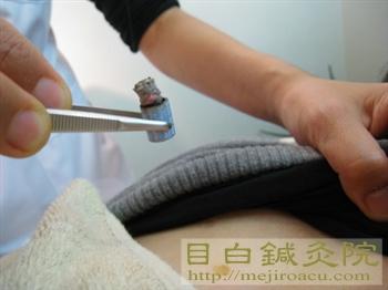 筒状のお灸 熱くないお灸 の取り方