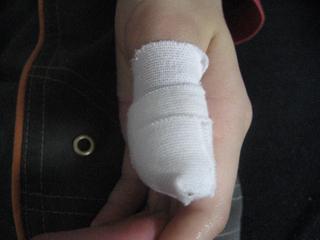 りょうたんの指