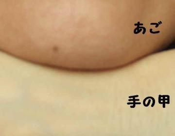手の甲(首と同色)vs顎