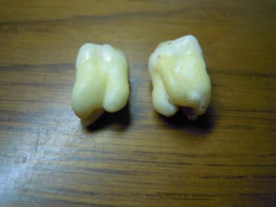 0908歯